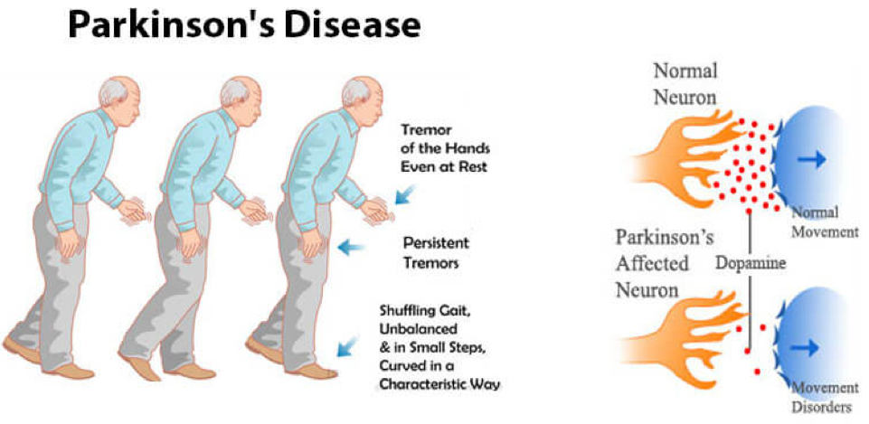 effects of parkinson s disease Parkinson's disease is a progressive disease it starts slowly, often with a minor tremor but over time, the disease will affect everything from your speech to your gait to your cognitive.